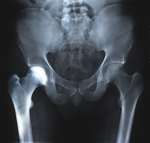 Transient Osteoporosis of the Hip